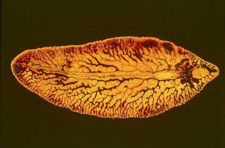 трематоды у человека лечение