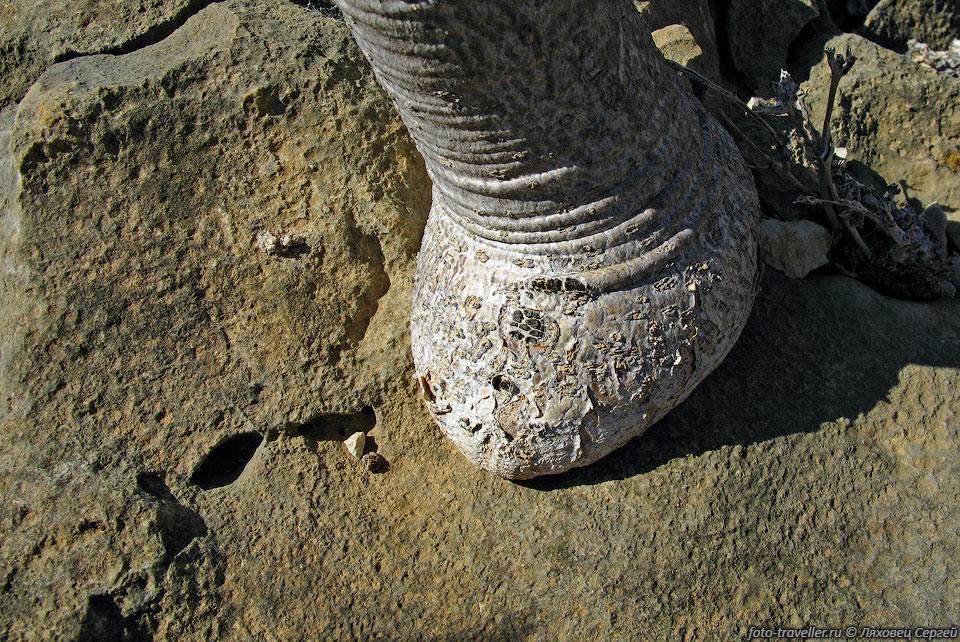 Слоновая болезнь ног причины лечение народными средствами