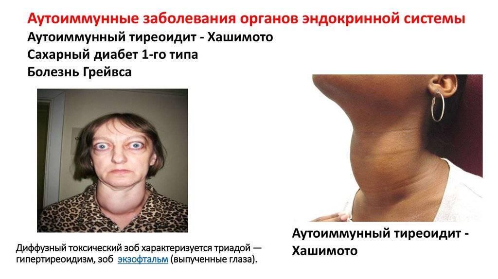 Причины и последствия увеличения щитовидной железы