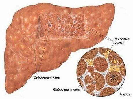Особенности реактивного гепатита печени у взрослых и детей