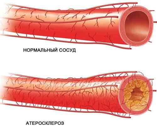 Что такое атеросклероз аорты коронарных артерий: его признаки, последствия и методы лечения