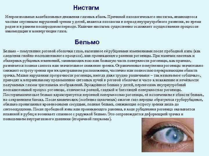непроизвольные колебательные движения глазных яблок это