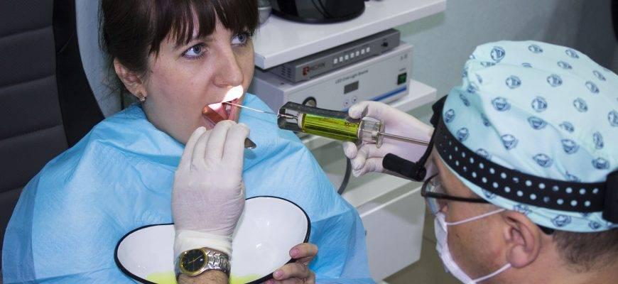 Промывание миндалин: суть процедуры, показания, способы, можно ли дома