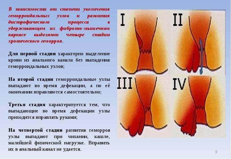 Геморроидальные узлы: фото, что это, симптомы патологии и лечение