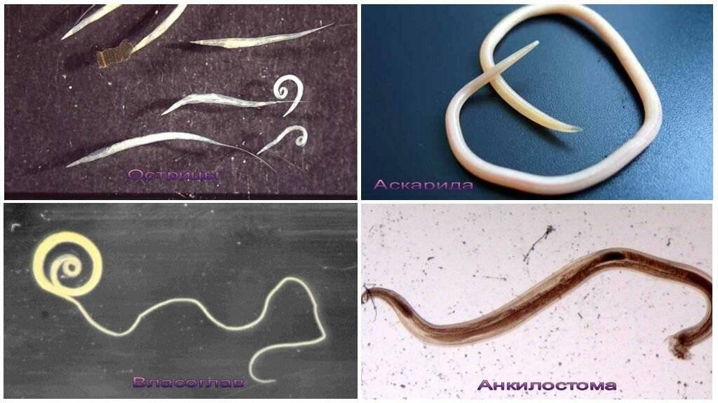 Как определить наличие паразитов в организме человека