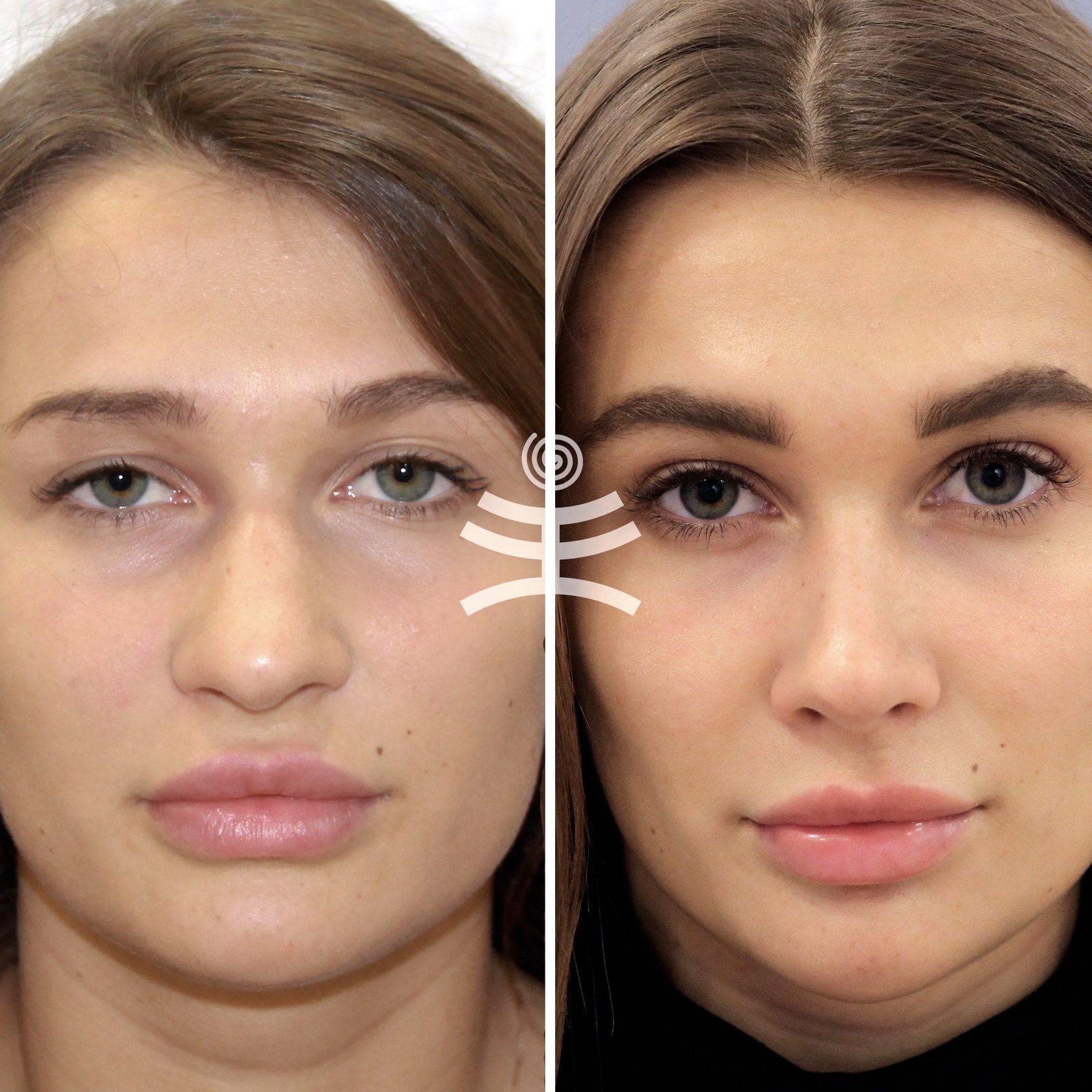 уменьшить кончик носа