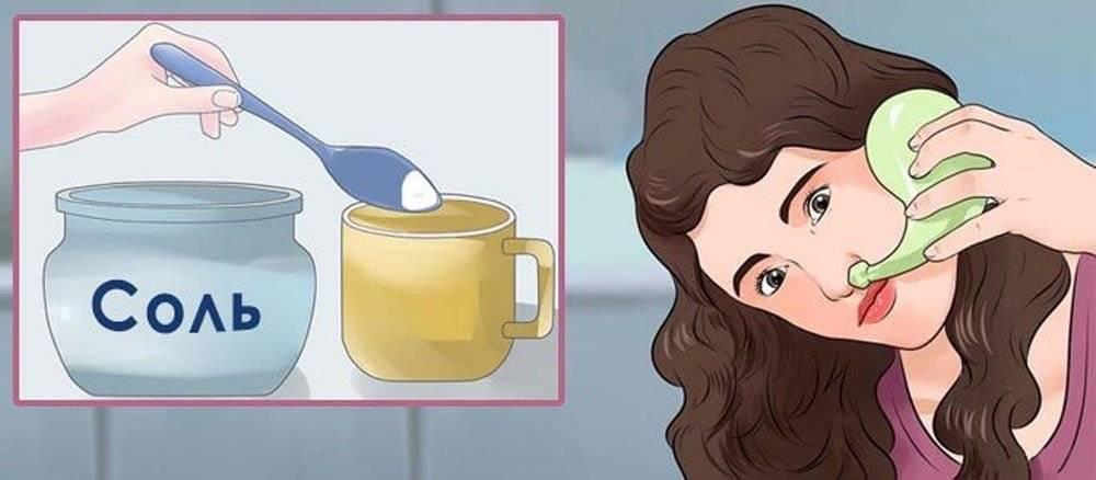 Солевой раствор для промывания носа: лечимся разумно