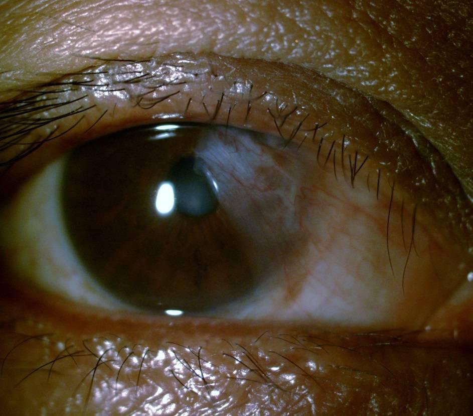 Птеригиум глаза: фото болезни после операции, степени птеригиума и лечение народными средствами
