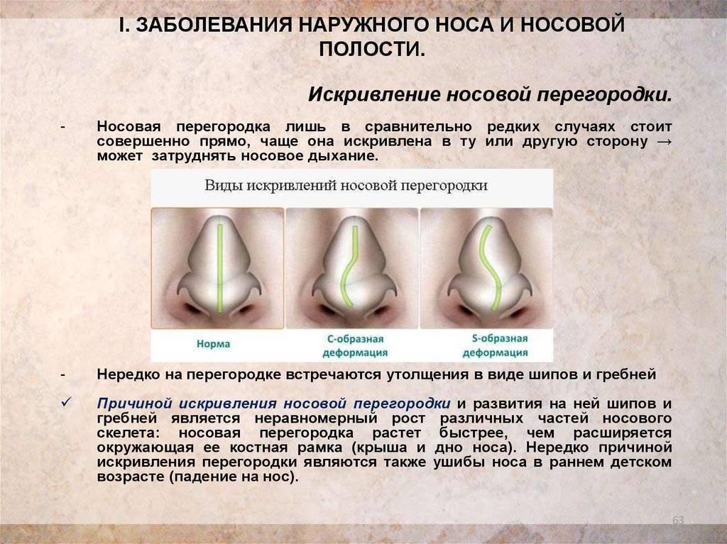 хронические заболевания носа
