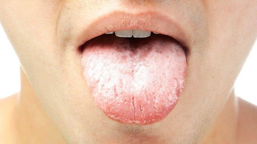 герпес под языком