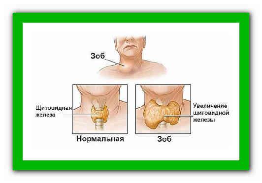 Аденома паращитовидной железы: что это такое, прогноз, симптомы