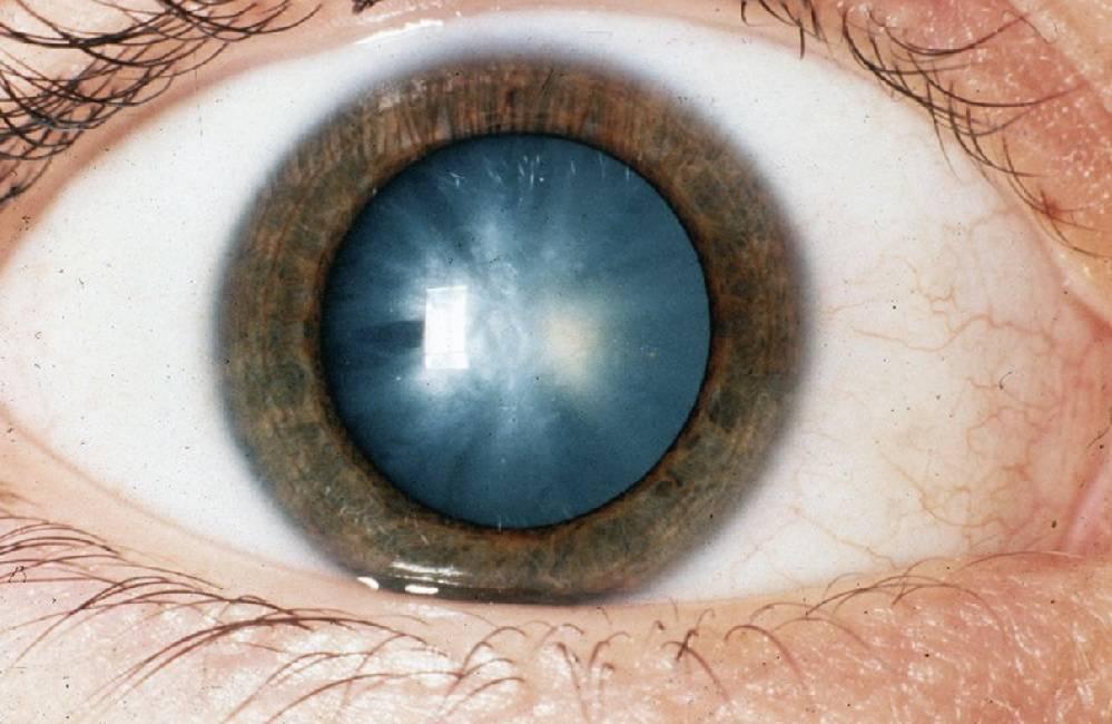 затуманенность зрения
