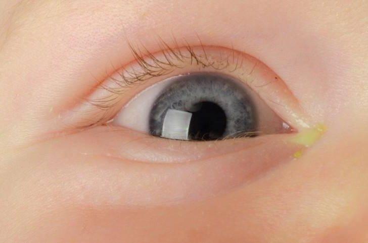 у ребенка воспалился глаз чем лечить
