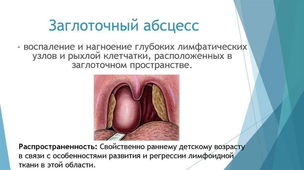 Заглоточный абсцесс — большая медицинская энциклопедия