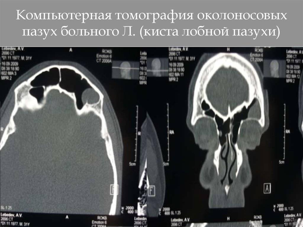 Мицетома гайморовой пазухи: дифференциальный диагноз с раковыми новообразованиями