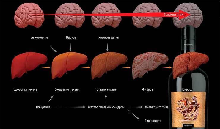 Участок фиброза в печени