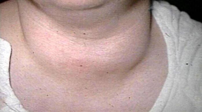 Узловой зоб щитовидной железы: причины, симптомы, диагностика и лечение | pro shchitovidku