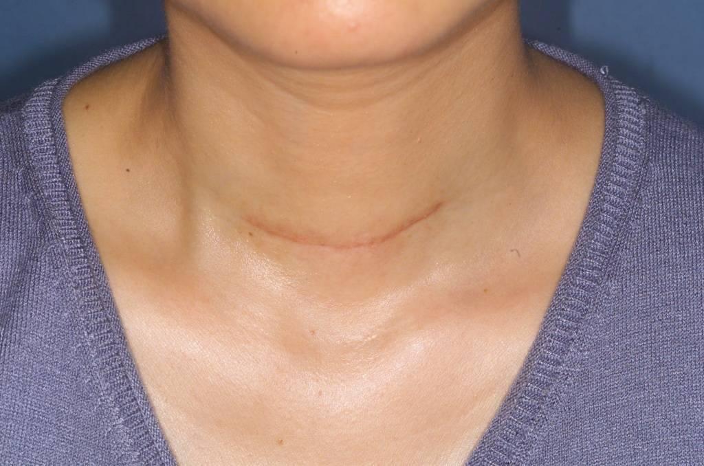 Причины и признаки увеличения щитовидной железы