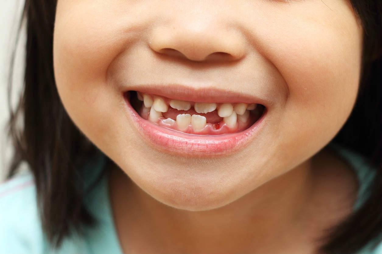 Кривые молочные зубы!!!