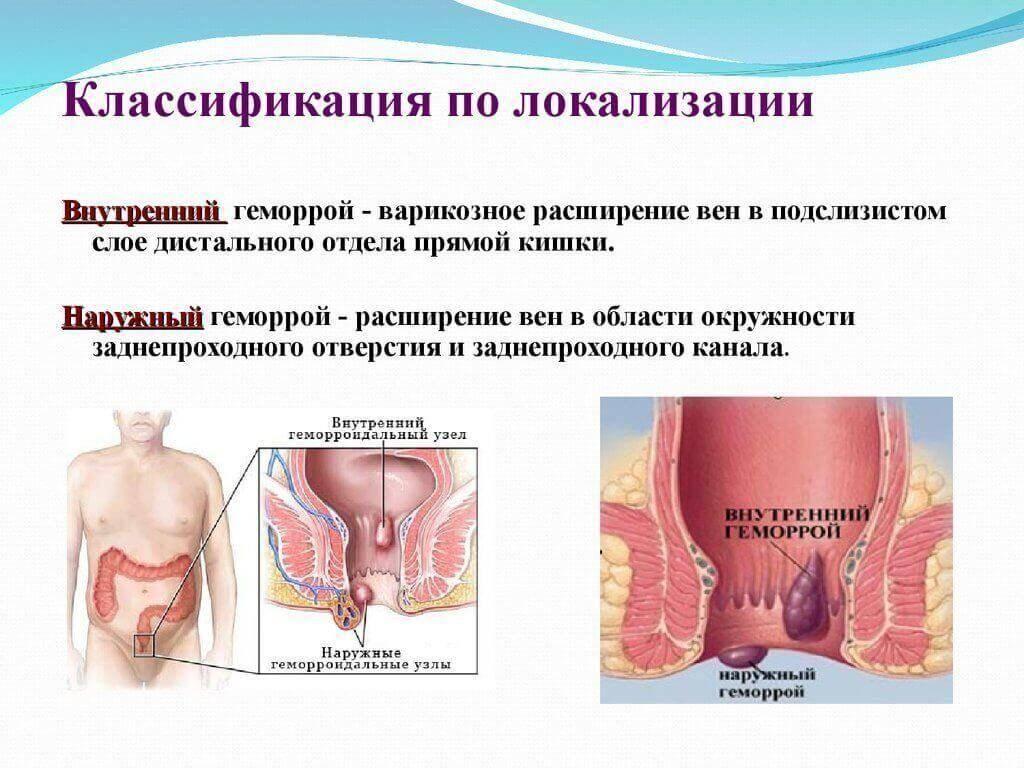 Внутренний геморрой у женщин: симптомы и как лечить