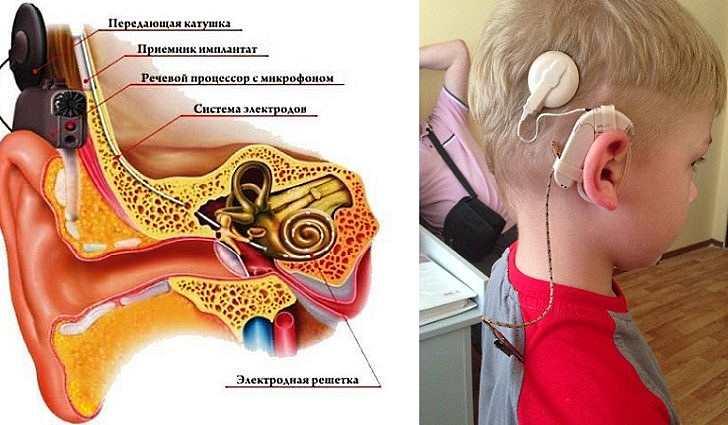 Как восстановить слух при тугоухости? можно ли восстановить слух?