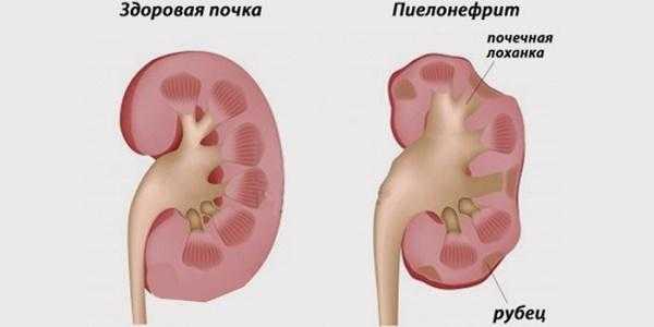 цистит и пиелонефрит симптомы