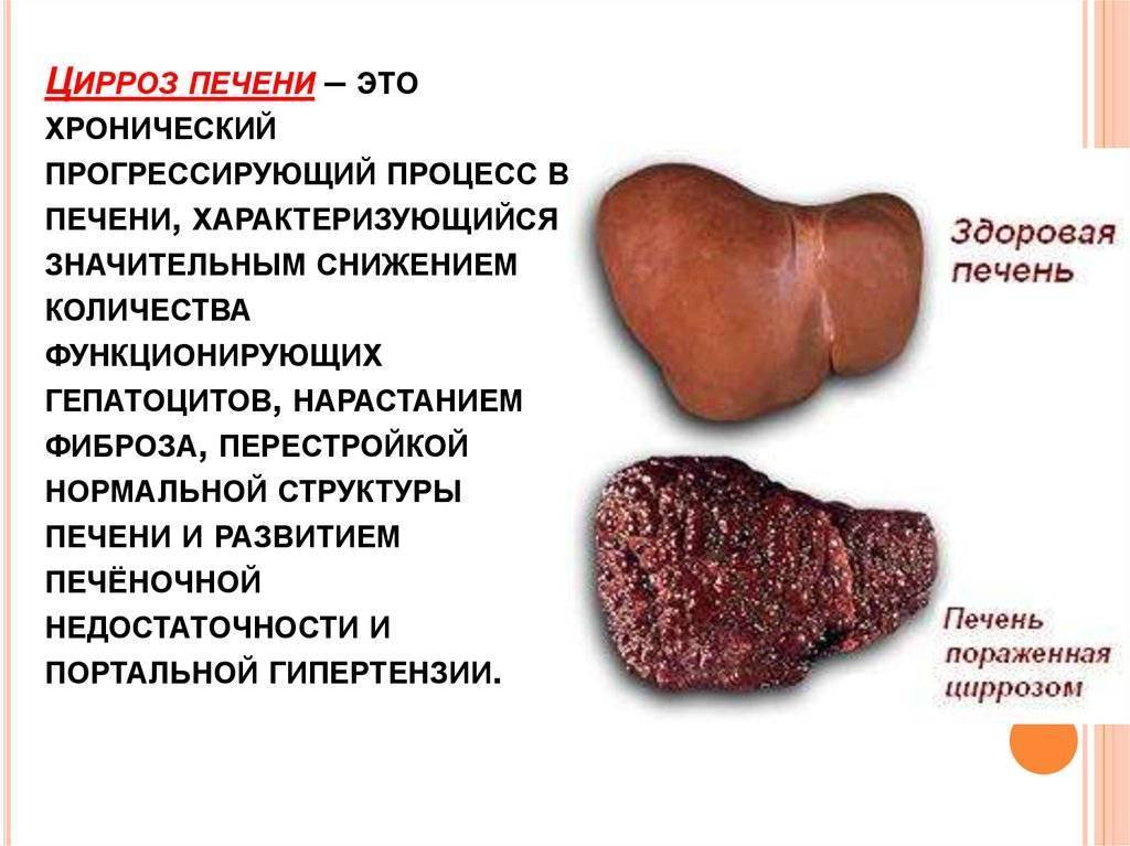 цирроз печени передается половым путем