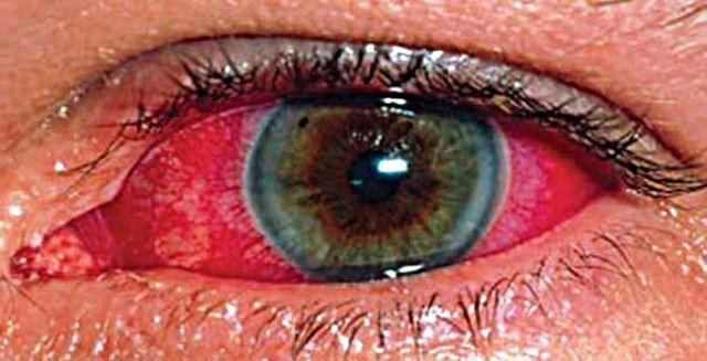 химический ожог роговицы глаза лечение