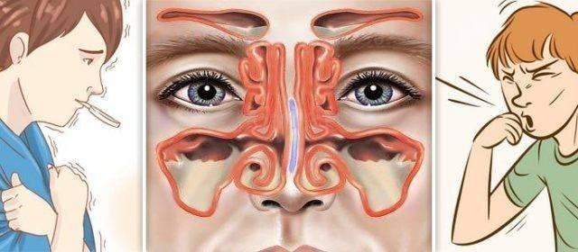 раздражение слизистой носа