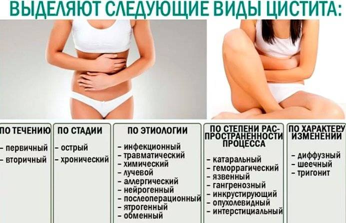 Лучевой цистит – симптомы и лечение