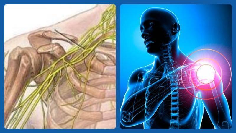невралгия плечевого сплетения лечение