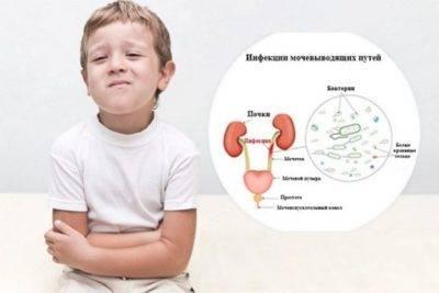 Хроническая форма цистита у детей
