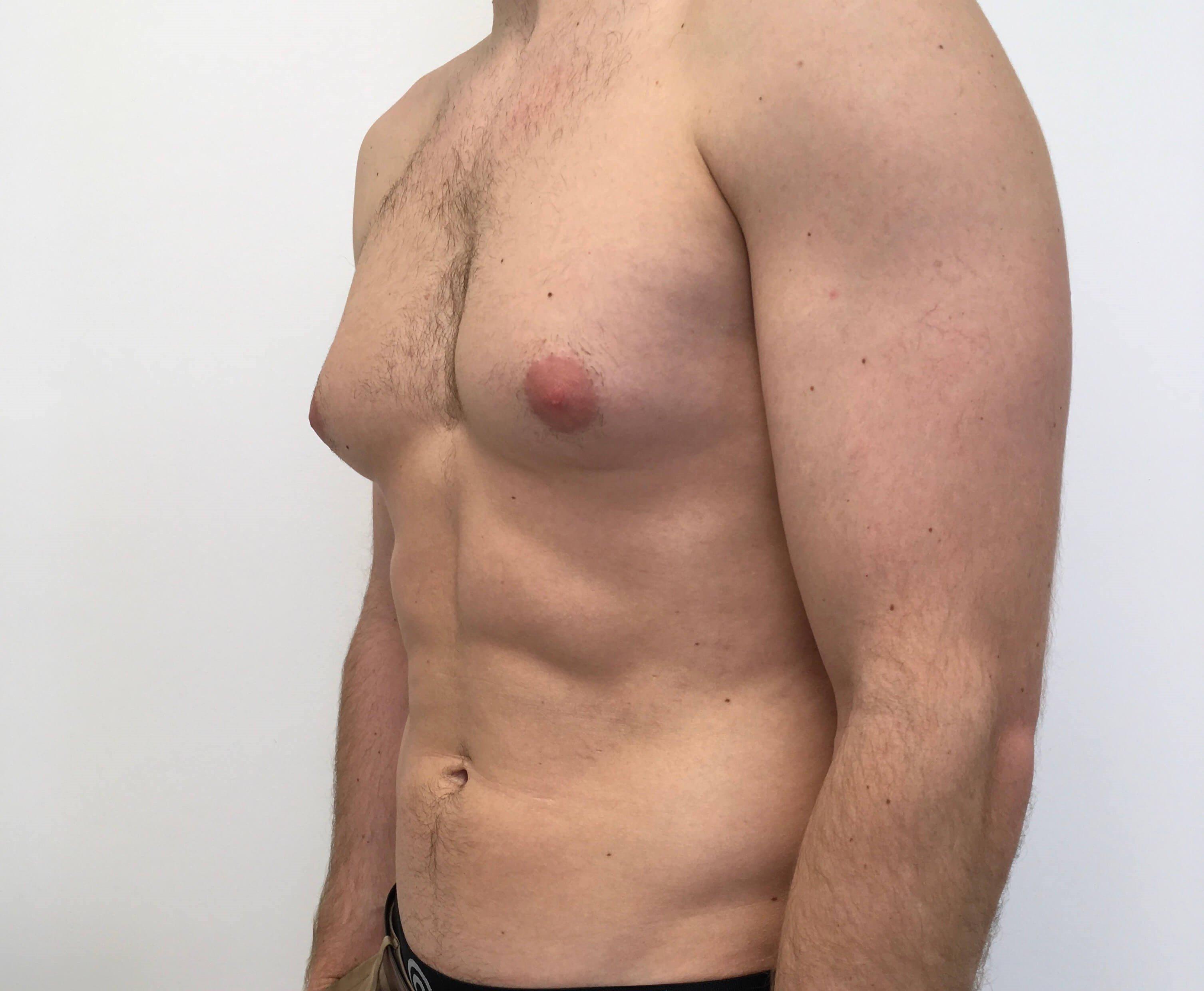 Мастопатия у мужчин: симптомы и лечение мужских молочных желез. мастопатия у мужчин: причины заболевания, симптомы, лечение.