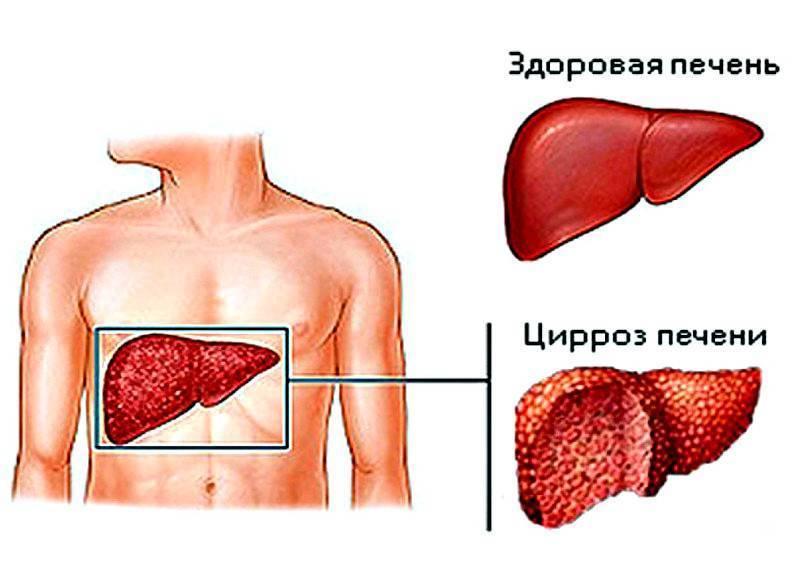 питание при фиброзе печени