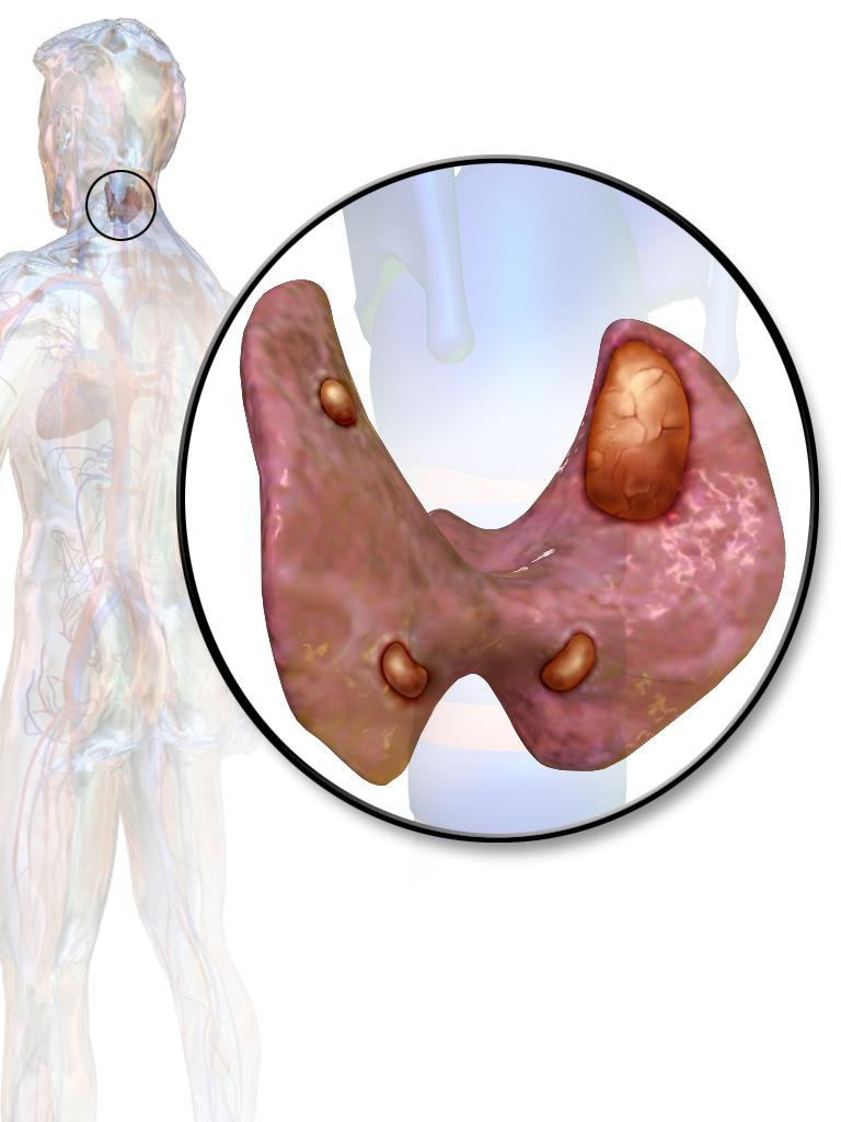 аденома щитовидной железы симптомы
