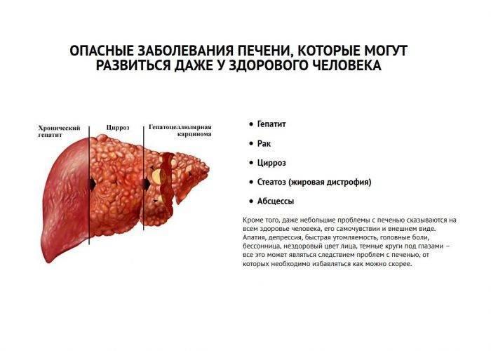 заболевания печени у детей симптомы