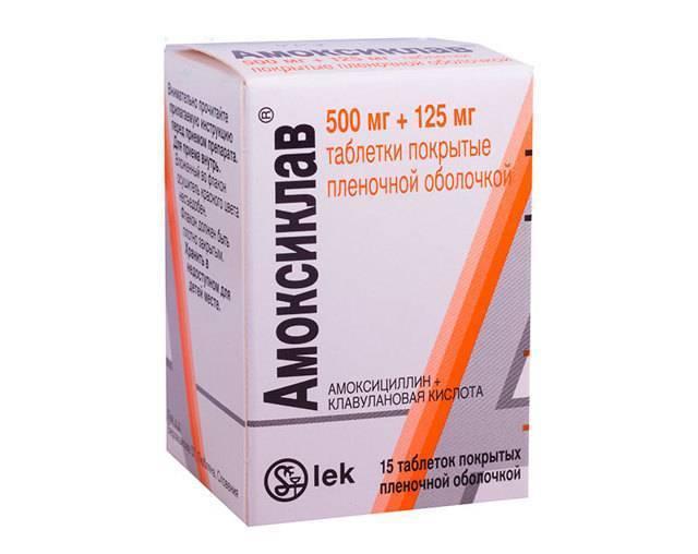Ангина - лечение быстро и эффективно: препараты, антибиотики, чем лечить у взрослых и детей
