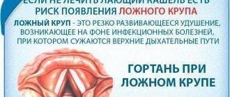 Что нужно знать о сухом горловом кашле? лечим сухой горловой кашель правильно