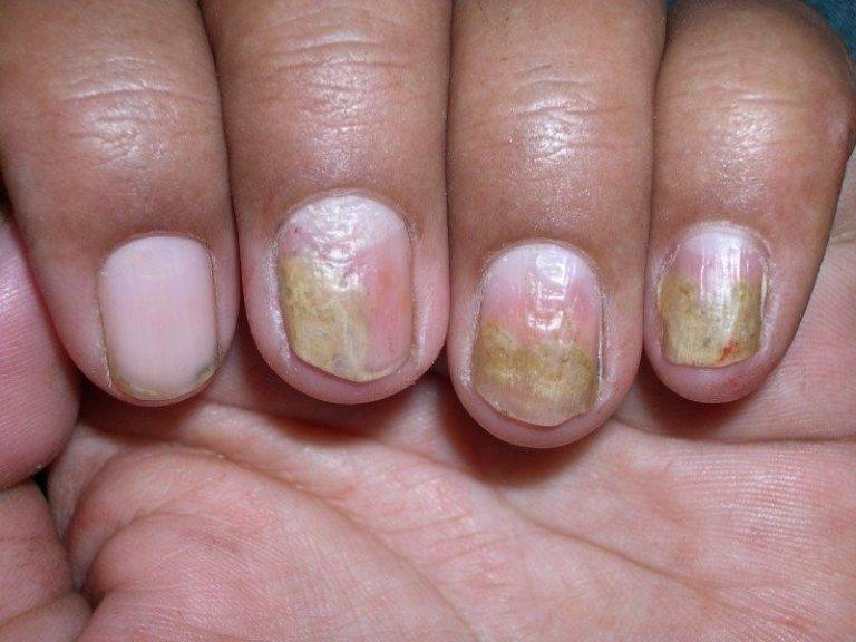 изменения ногтей при псориазе