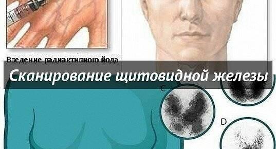 Как проверить щитовидную железу — обзор необходимых исследований. сканирование щитовидной железы - в чем суть метода исследования? в каких городах делают сканирование щитовидной железы