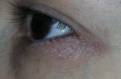 покраснение в уголке глаза с внутренней стороны