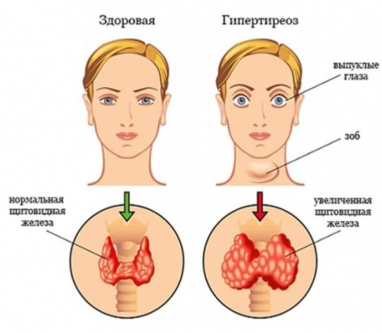 Заболевания щитовидной железы, симптомы у женщин, лечение болезней