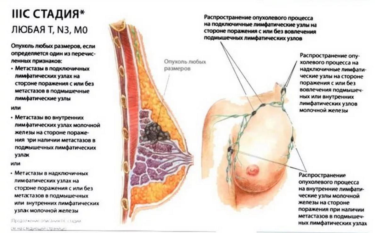 Почему возникает лимфаденит при мастопатии, и можно ли избавиться от такого симптома