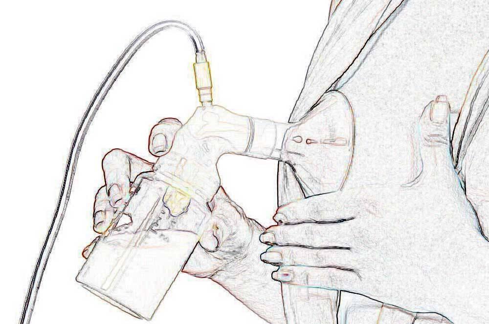 Победим лактостаз