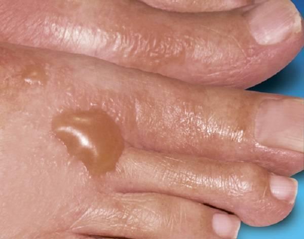 Буллезный дерматит: причины, симптомы, диагностика и лечение