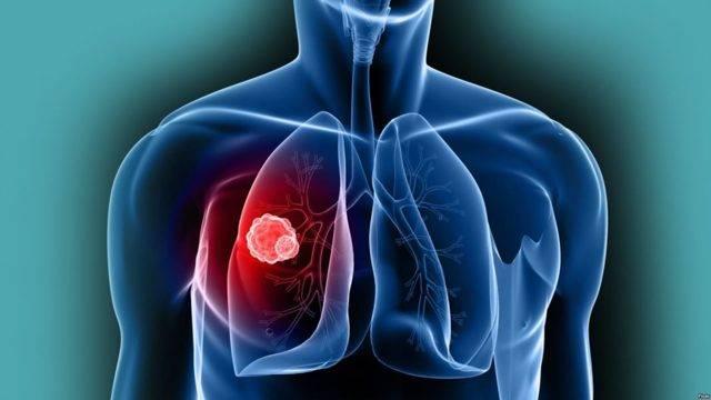 Какой онкомаркер сдать на рак горла