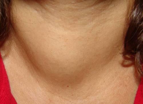 Как лечить щитовидную железу, чтобы рассосались узлы