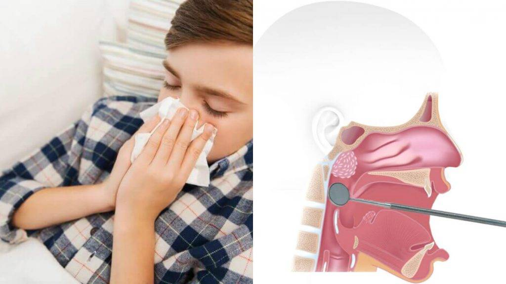 Влажный кашель и хрипы у ребенка в горле