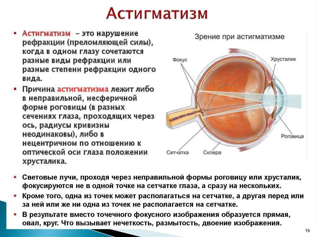 Дальнозоркость у детей (гиперметропия): причины, признаки и аппаратное лечение, врожденная форма, особенности у детей 1-3 лет