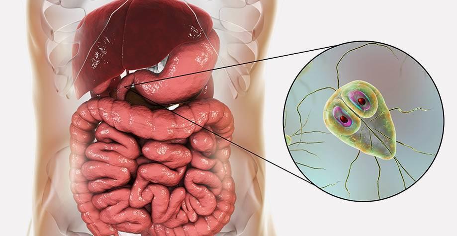 Лямблиоз у взрослых — симптомы и лечение